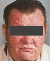 Man with severe rosacea