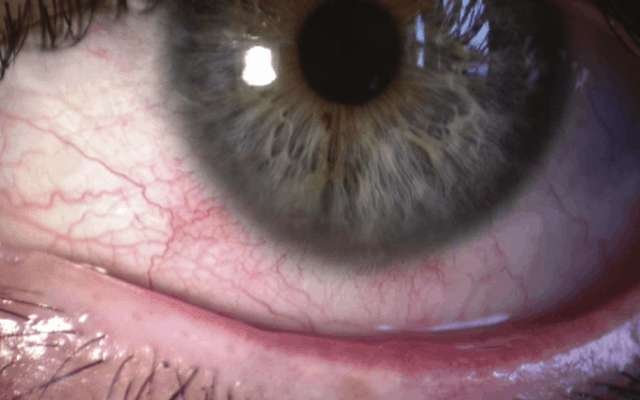 rosacea in eye