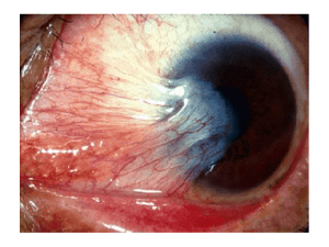 An advanced stage of ocular rosacea pterygium