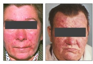 Woman and man with severe case rosacea